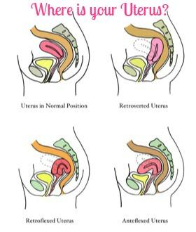 uterus position